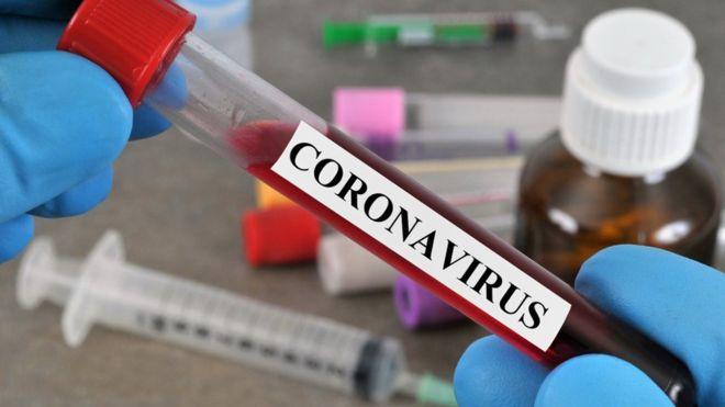 Abantu 18 basanganywe Coronavirus, 19 ni bo bakize